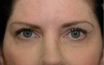 Upper eyelid droop [ptosis] repair with fat grafting to temples after 674204
