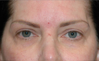 Upper eyelid droop [ptosis] repair with fat grafting to temples before 674204