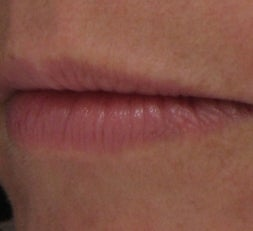 Lip Enhancement with Juvederm Ultra before 52906