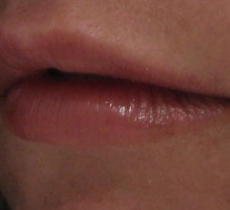 Lip Enhancement with Juvederm Ultra after 52906