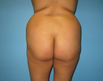 buttock augmentation (Brazilian buttock lift) 325621