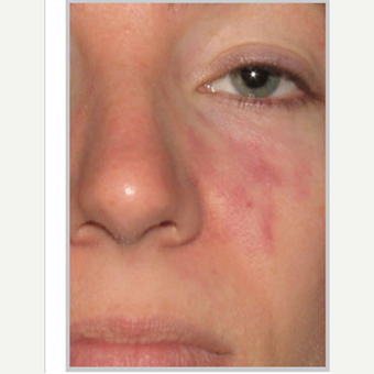 18-24 year old woman treated with Birthmark Removal