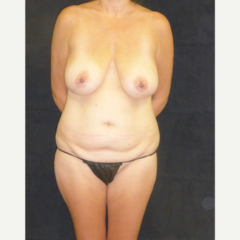 45-54 year old woman treated with Mommy Makeover before 3685997