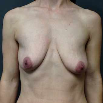25-34 year old woman treated with Breast Lift with Implants before 3043183