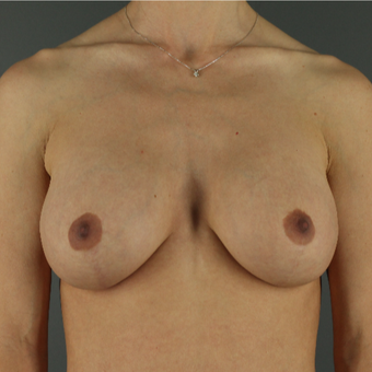 25-34 year old woman treated with Breast Lift with Implants after 3043183