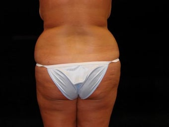 Brazilian Buttocks Lift before 246903