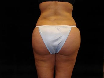 Brazilian Buttocks Lift after 246903