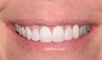25-34 year old woman treated with Porcelain Veneers after 3735922