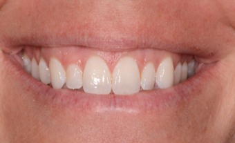 25-34 year old woman treated with Porcelain Veneers before 3735922