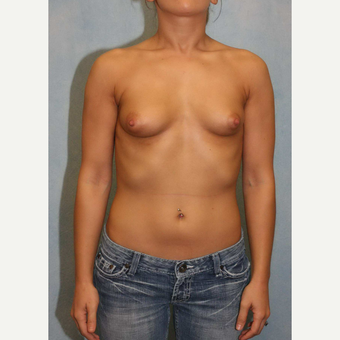25-34 year old woman treated with Breast Augmentation before 3487551