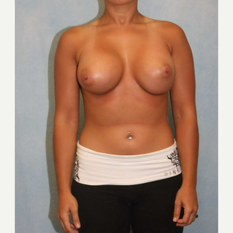 25-34 year old woman treated with Breast Augmentation after 3487551