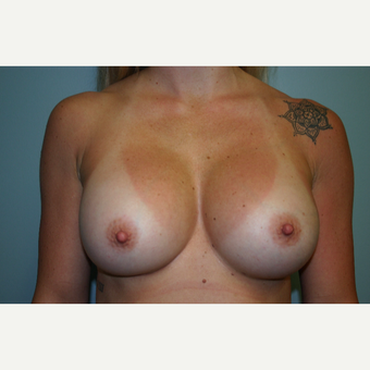 Breast Implant Exchange Saline to Silicone Implants after 3032795