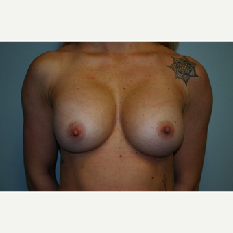 Breast Implant Exchange Saline to Silicone Implants before 3032795