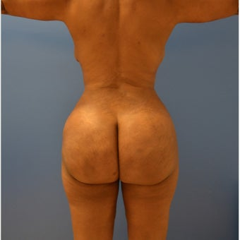 25-34 year old man treated with Brazilian Butt Lift after 1695948