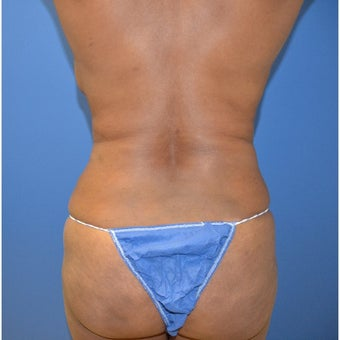 25-34 year old man treated with Brazilian Butt Lift before 1695948