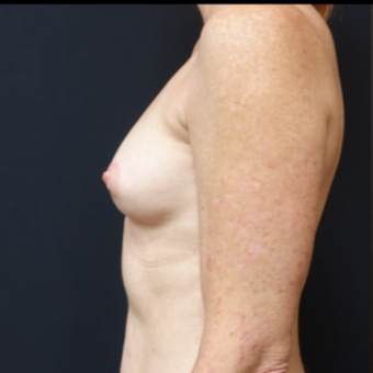 35-44 year old woman treated with Mentor Breast Implants before 3529831