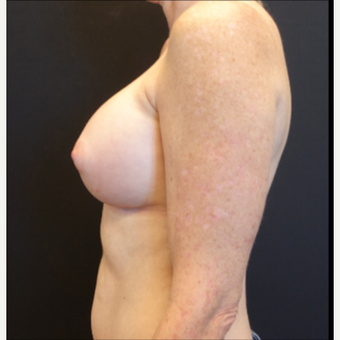 35-44 year old woman treated with Mentor Breast Implants after 3529831