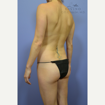 25-34 year old woman treated with Liposuction before 3391685