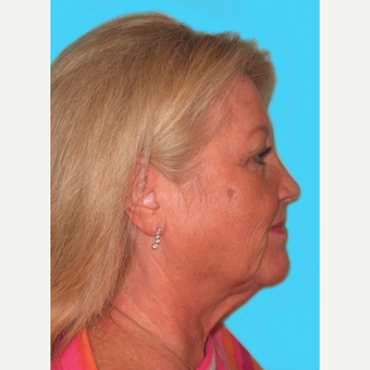 Facelift before 3824928
