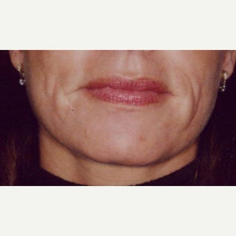 45-54 year old woman treated with Restylane before 1795373