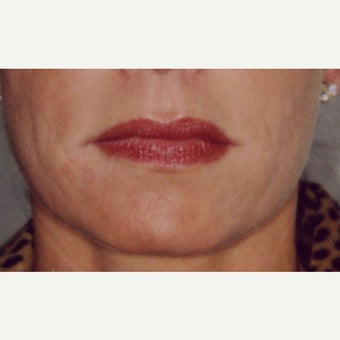 45-54 year old woman treated with Restylane after 1795373