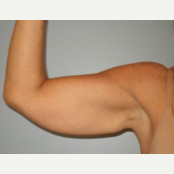 35-44 year old woman treated with Arm Lift before 3280755
