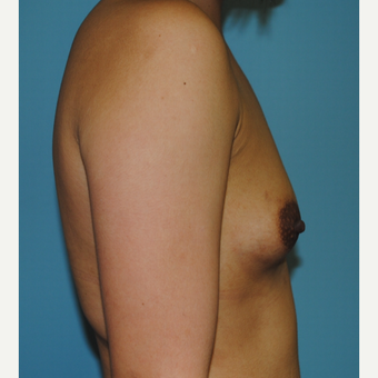 18-24 year old woman treated with Breast Augmentation before 3060920