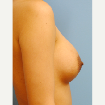 18-24 year old woman treated with Breast Augmentation after 3060920
