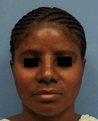 African American Rhinoplasty after 1268944