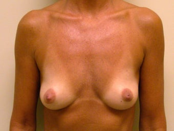 51-year-old Female breast augmentation with 350cc smooth round High Profile silicone Gel implants before 698982