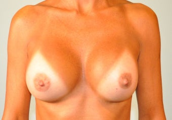 51-year-old Female breast augmentation with 350cc smooth round High Profile silicone Gel implants after 698982