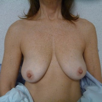 55-64 year old woman treated with Breast Lift before 2248831