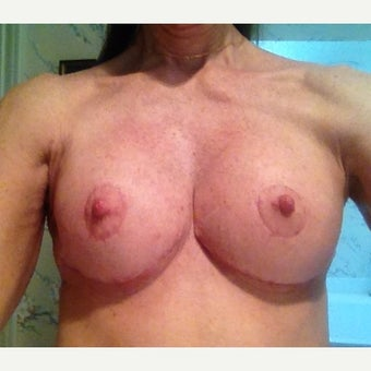 55-64 year old woman treated with Breast Lift after 2248831
