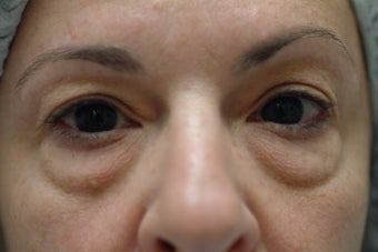 49 year old women with excess upper eyelid skin and lower eyelid bags before 1323987