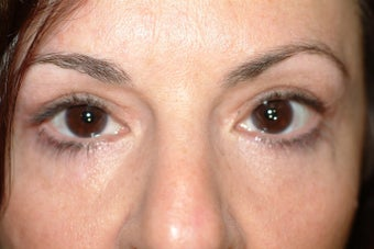 49 year old women with excess upper eyelid skin and lower eyelid bags after 1323987