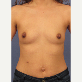 25-34 year old woman treated with Breast Augmentation before 3106228