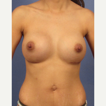 25-34 year old woman treated with Breast Augmentation after 3106228
