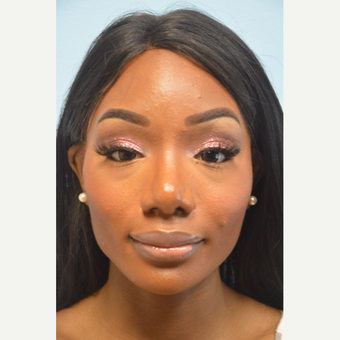 African American Rhinoplasty and Chin Implant after 3097975