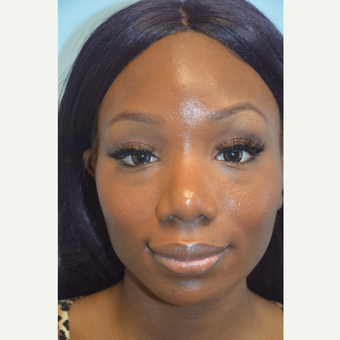 African American Rhinoplasty and Chin Implant before 3097975