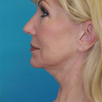 55-64 year old woman treated with SMAS Facelift before 2067384