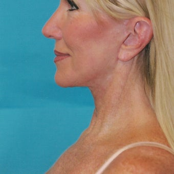 55-64 year old woman treated with SMAS Facelift after 2067384