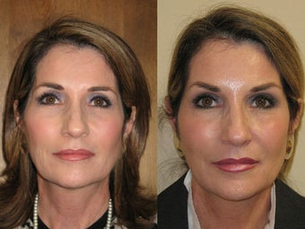 Sculptra before 1012840