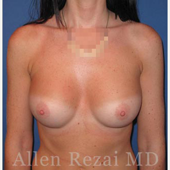 Bilateral Breast Augmentation-Patient has type I Tuberous Breast Deformity - Pre- & 2 Years Post-op after 3473940