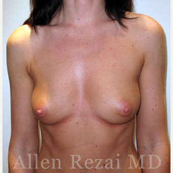 Bilateral Breast Augmentation-Patient has type I Tuberous Breast Deformity - Pre- & 2 Years Post-op before 3473940