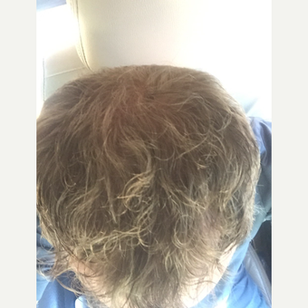 35-44 year old man treated with Hair Loss Treatment after 3109477