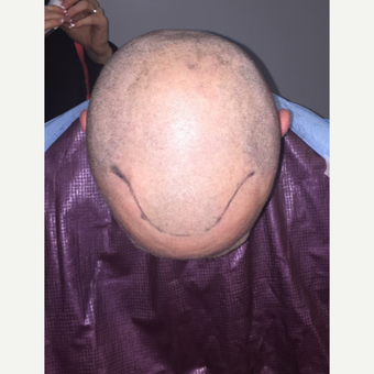 35-44 year old man treated with Hair Loss Treatment before 3109477
