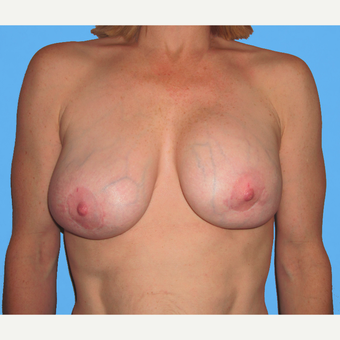 Breast Lift with Implants before 3748671