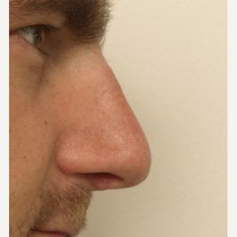 25-34 year old man treated with Rhinoplasty after 3442354