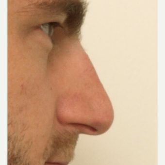 25-34 year old man treated with Rhinoplasty before 3442354