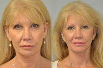 60 year old female underwent facelift, neck lift, upper eyelid surgery and browlift.  before 1355700